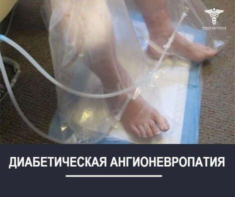 ДИАБЕТИЧЕСКАЯ-АНГИОНЕВРОПАТИЯ-НИКОЛЕНКО КЛИНИК КИПР