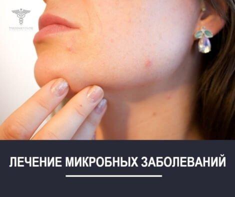 ЛЕЧЕНИЕ-МИКРОБНЫХ-ЗАБОЛЕВАНИЙ В НИКОЛЕНКО КЛИНИК