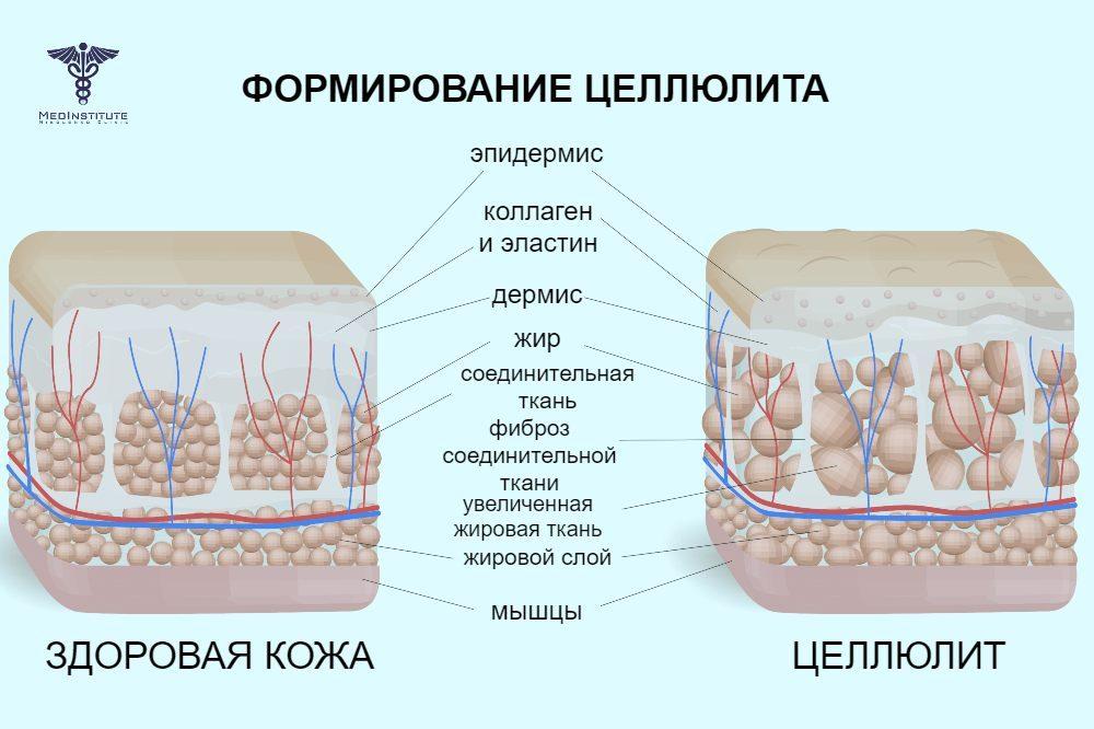 озонотерапия от целлюлита в Николенко Клиник Кипр